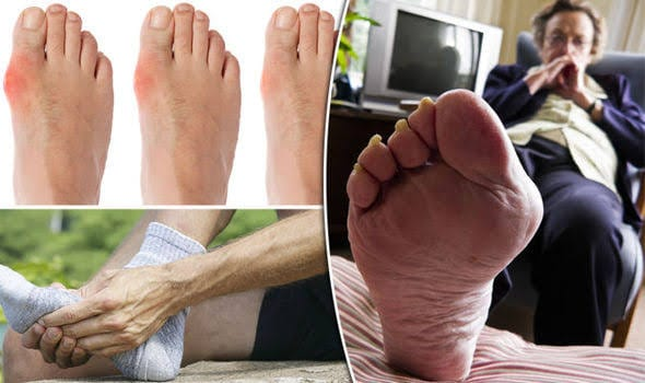 End Of Gout General
